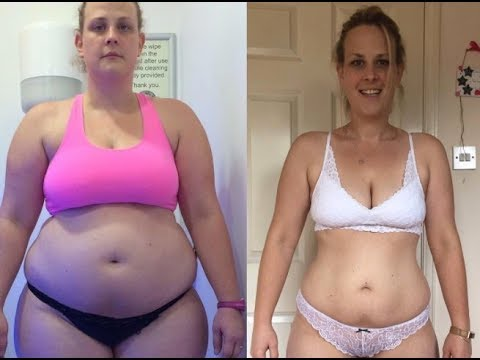 WEIGHT LOSS MOTIVATION    Cinderella Solution    Before and After Pictures Top Rated